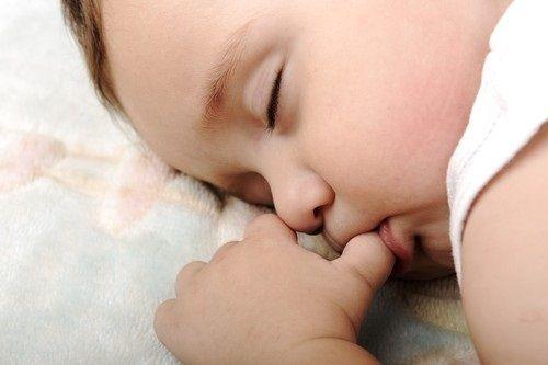 Mút ngón tay làm hỏng răng miệng ở trẻ