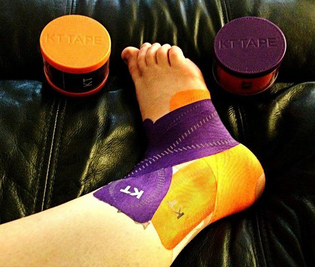 KT Tape Pro for a Grade 3 ankle sprain