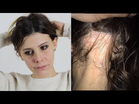 CURA MIRACOLOSA ANTICADUTA e che fa crescere i capelli VELOCEMENTE ! - YouTube