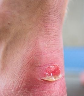 BLISTER REMEDIES – HOW TO PREVENT FOOT BLISTER