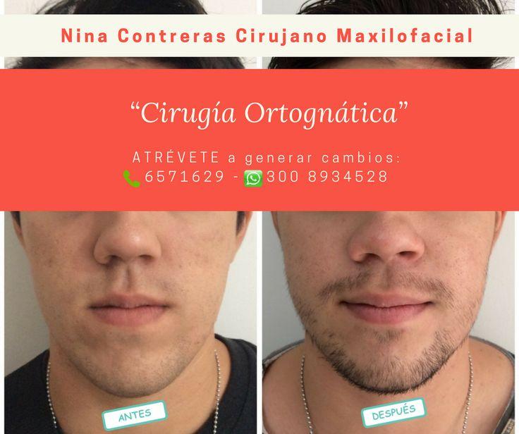 Especialistas en #cirugía #ortognática  Agenda tu cita ya:  ☎️ 6571629  300 8934528 #clientefelíz #sonríe #ortodoncia #implantes #ninacontreras #diseño http://ninacontrerascmf.com/