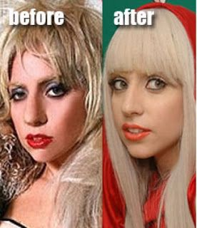 Plastic Surgery: Lady Gaga Plastic Surgery Before and After Nose Job and Facelift