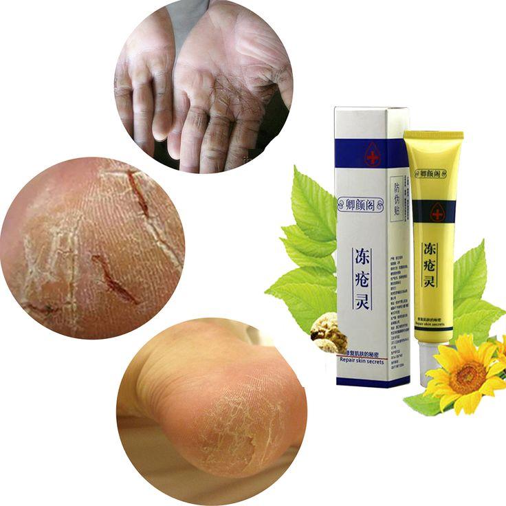 QinY'G 30G Repair Chilblain Anti Chapping Moisturizing Hand Cream Lotion Improve Frostbite Cracked Skin Tender Hands Feet Cream
