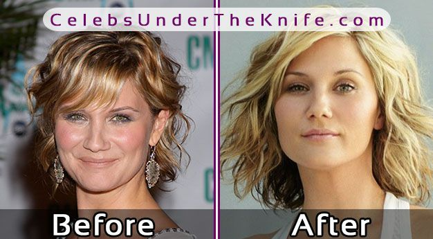 Jennifer Nettles Before After Photos #celebsundertheknife #celebs #celebrity #plasticsurgery #celebritysurgery #nosejob