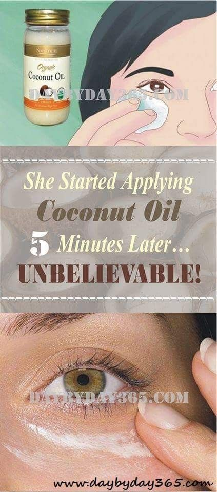 Repin !! - She Started Applying Coconut Oil Around Her Eyes. 5 Minutes Later… UNBELIEVABLE!