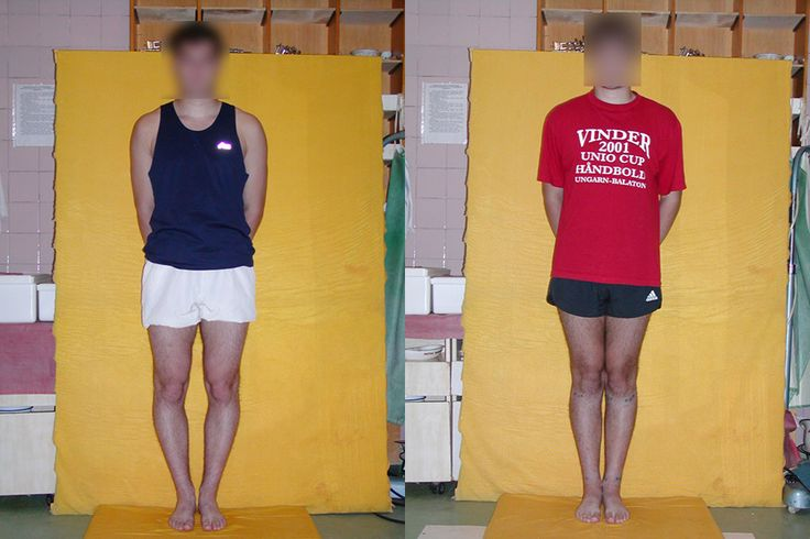 Limb lengthening cost in bangalore dating 3