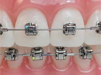 Different Orthodontic Braces for Adults and Children.   #Typesofbraces #bracesforAdults #bracesforchilds