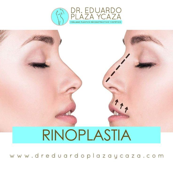 La rinoplastia puede reducir o incrementar el tamaño de su nariz, cambiar la forma de la punta de la nariz o del puente, agudizar la abertura de los orificios nasales o cambiar el ángulo entre la nariz y el labio superior. También puede corregir un defecto de nacimiento o una lesión, o ayudar a mejorar problemas de respiración.  www.dreduardoplazaycaza.com  Instagram: @dr.plaza Consúltanos o escríbenos al whatsapp: 📞 Claro: 0959508242 📞 Movistar: 0958869673