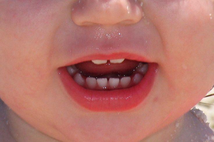 Wenn Kinder Angst vor dem Zahnarzt haben - Angst vor dem Zahnarzt – ein massives Problem, dessen Ursachen oft in den ersten Lebensjahren liegen! Ein spezieller Kinderzahnarzt kann helfen.