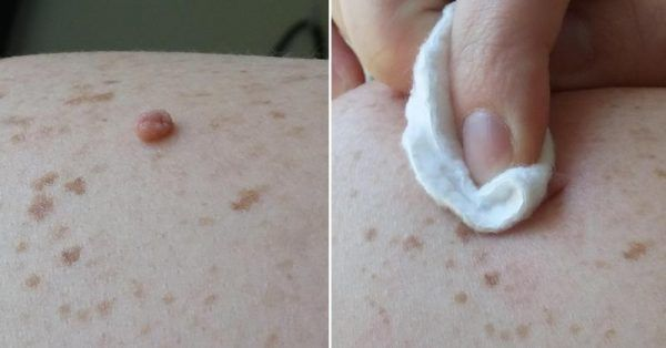 Skin tags are common soft skin growths, which in most cases appear on the neck, in the groin area, around the arms, around the breasts, or in the armpits. They are not a serious health threat, but they might be embarrassing or cause discomfort. The main cause of skin tags is obesity. Yet, they can […]