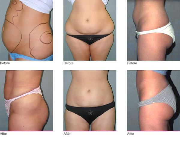 Complications And Procedure of Liposuction Surgery