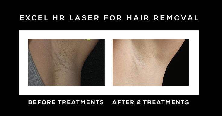 #TransformationTuesday ⚡️Before & After 2 Laser Hair Removal Treatments with the Excel HR Laser!⚡️Learn more about the best laser treatments for 8 different goals on our blog: www.dermcenterofacadiana.com/best-lasers-acne-rosacea-scars-more ⚡️#HairRemoval Learn more about Hair Removal Treatments #stylenovi https://www.stylenovi.com/3-best-ways-to-remove-underarms-hair-naturally/ https://www.stylenovi.com/how-to-get-rid-of-dark-underarms-permanently/