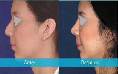 Rinoplastia Rinoplastia Salud Y Ejercicio Cirugia Plástica