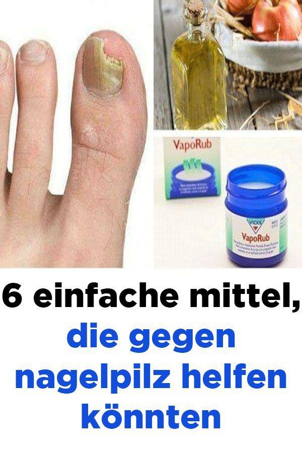 6 einfache Mittel, die gegen Nagelpilz helfen könnten