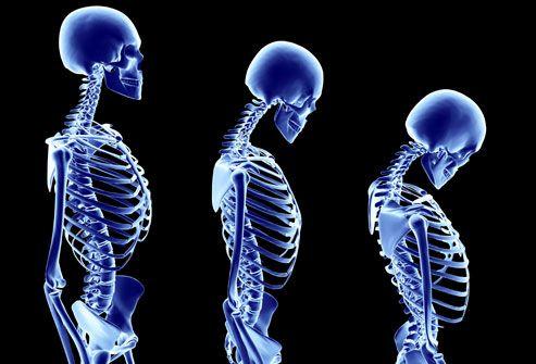 WOMEN'S HEALTH:Osteoporosis