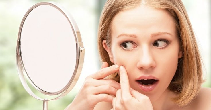 Is Low Stomach Acid The Reason Behind Your Acne?