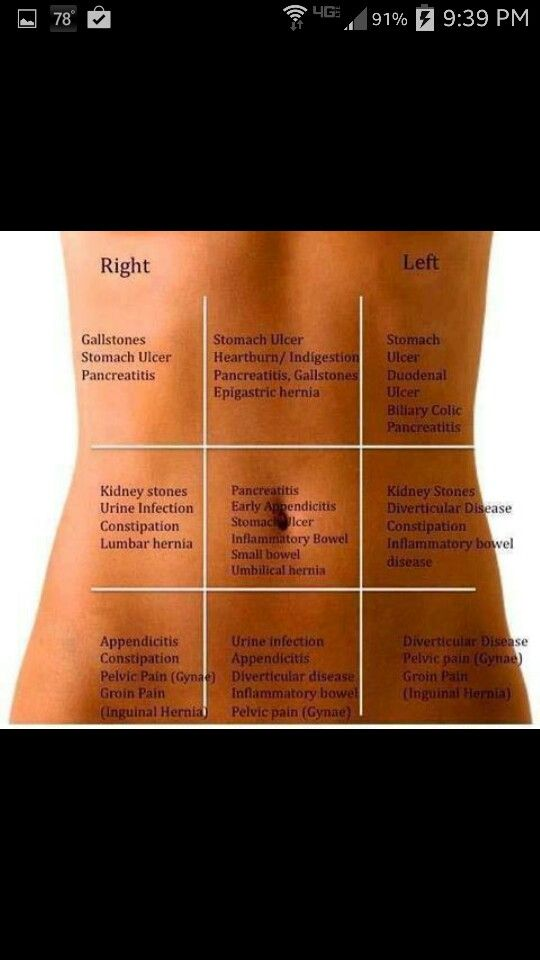 Abdomen cheat sheet back pain map