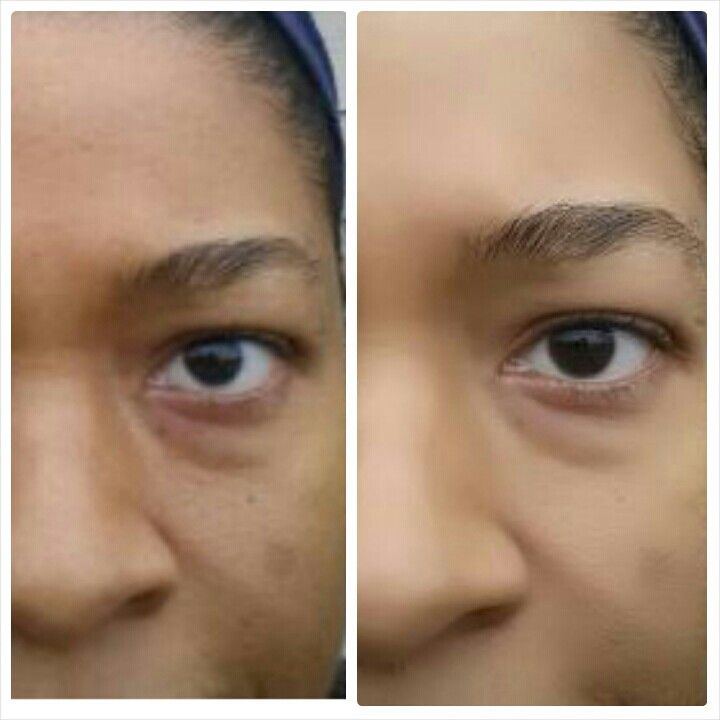 My new Diva's 20 minute before and after....this product works-Click on image to experience results #Uthmiracleskinfood #nontoxic $105