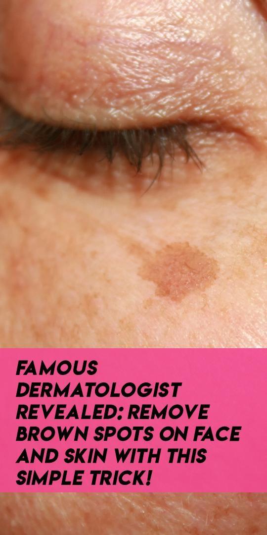 Girl facial brown spots removal atlanta beautiful girls