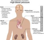blood pressure ayurvedic herbs - stress test blood pressure increase - causes of malignant high blood pressure - blood pressure check arm - high blood pressure vitamins herbs - how accurate is cvs blood pressure monitor 5122738266