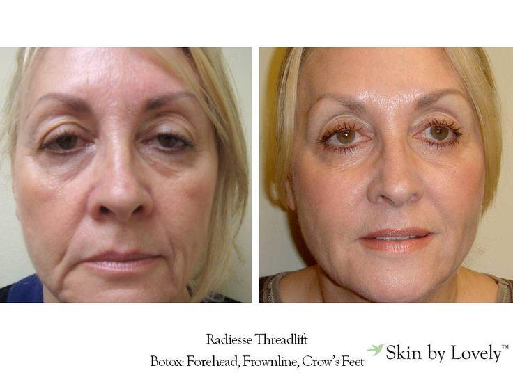 Radiesse Threadlift  Botox: Forehead, Frownline, Crow's Feet