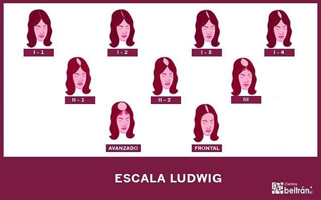 ¿Sabías que la escala de #Ludwig mide el grado de la #alopecia androgenética en #mujeres? ¡Estos son los diferentes niveles! #cabello #pelo…