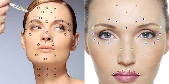 Quer parecer mais jovem? Veja como atenuar ou prevenir rugas de expressão, lendo tudo o que você precisa saber antes e depois do procedimento com Botox.
