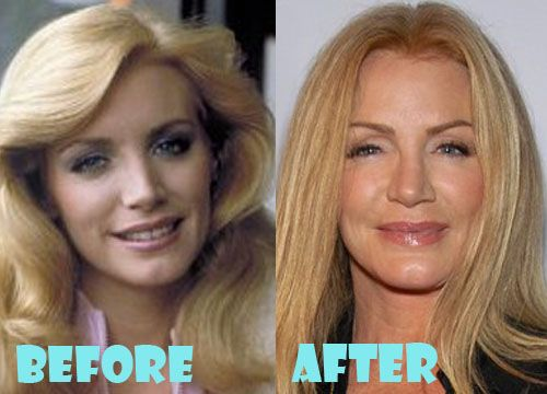Shannon Tweed Plastic Surgery Before and After Pictures