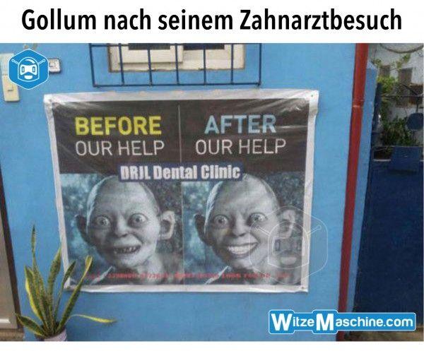 Arztwitze - Zahnarzt Witze - Gollum Meme lustig - Weiße Zähne