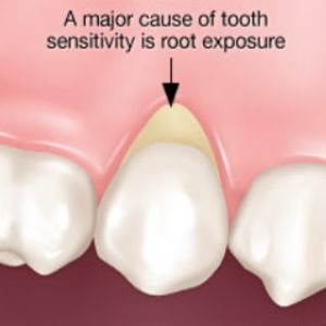 A major cause of tooth sensitivity is root exposure. How do you treat this in your dental office? Please tell me at http://www.dentaltown.com/MessageBoard/thread.aspx?s=2&f=217&t=222092&pg=1&r=3376930