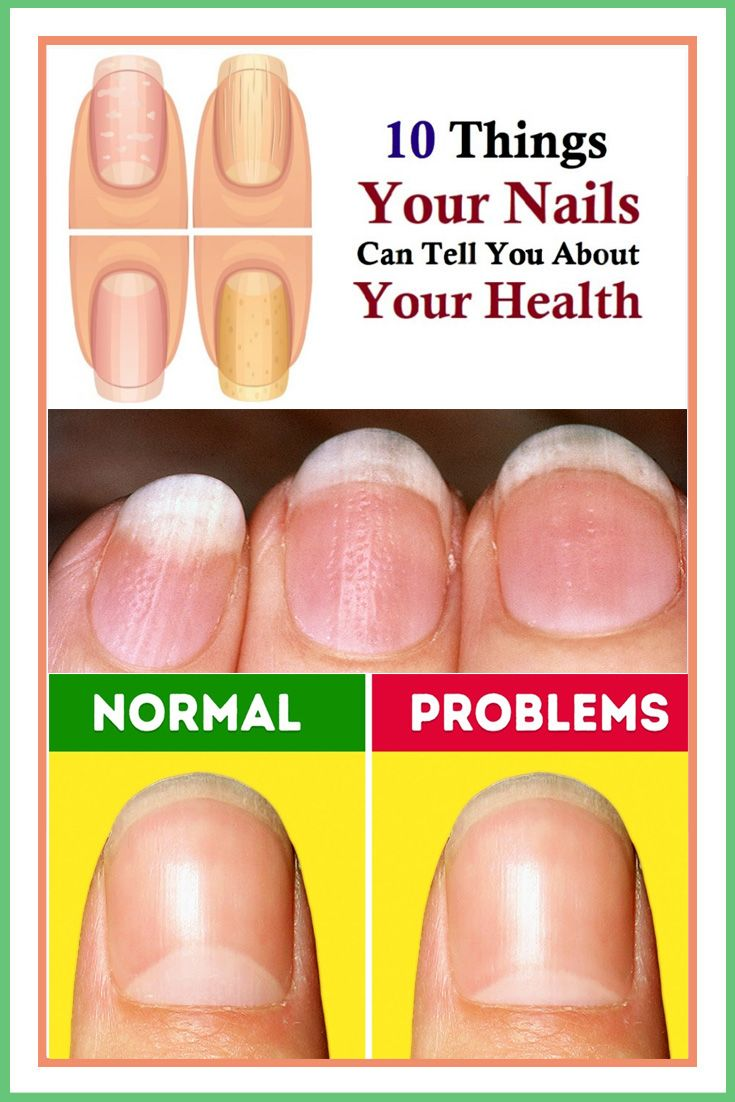 10 Things Your Nails Can Tell You About Your Health Told You So You Nailed It Yellow Nails