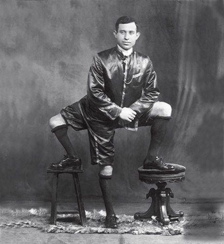Η απίθανη ιστορία του ανθρώπου με τα 3 πόδια και τα διπλά γεννητικά όργανα