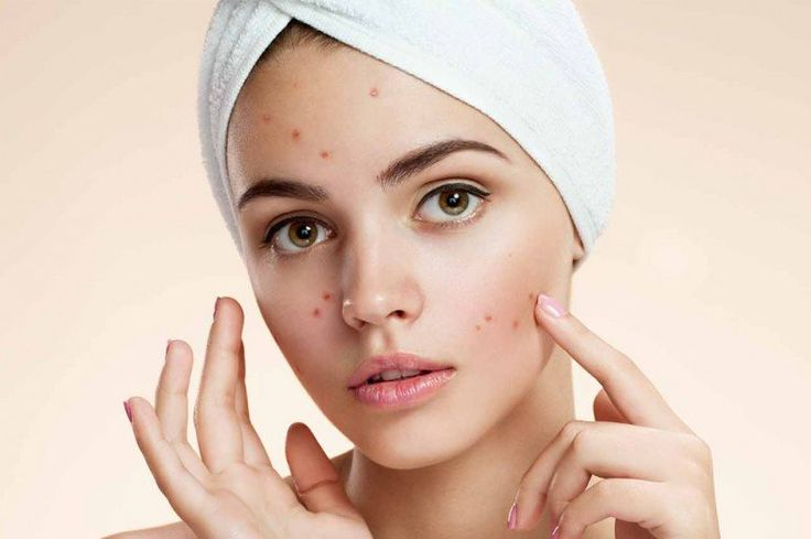Can Acne be Caused by Phentermine?