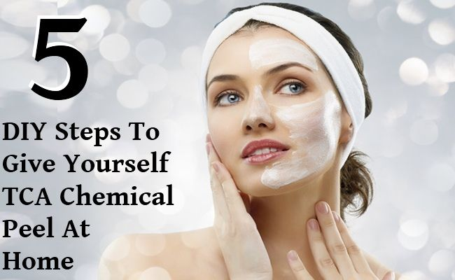 5 DIY Steps To Give Yourself TCA Chemical Peel At Home