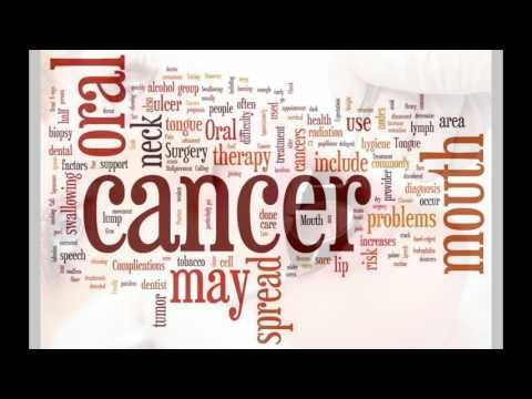 Signs of Mouth and Throat Cancer Carmel - WATCH VIDEO HERE -> http://bestcancer.solutions/signs-of-mouth-and-throat-cancer-carmel    *** signs of throat cancer ***   Signs of Mouth and Throat Cancer Carmel Dr. Linderman (317)846-3860 82 Sixth Street SE, Carmel, Indiana 46032 Video credits to the YouTube channel owner