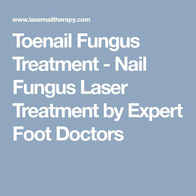 Toenail Fungus Treatment - Nail Fungus Laser Treatment by Expert Foot Doctors #ToenailFungusArticles