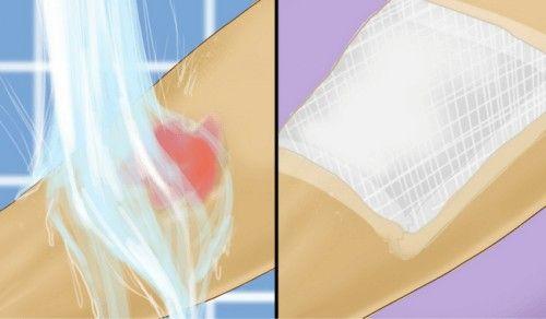 Les premiers soins à apporter en cas de brûlures à l'eau chaude | amelioretasante.com