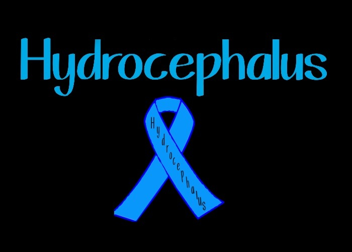 Hydrocephalus Natural Cure