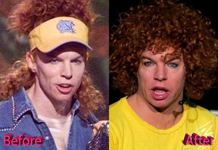 carrot-top-before-and-after-cosmetic-surgery