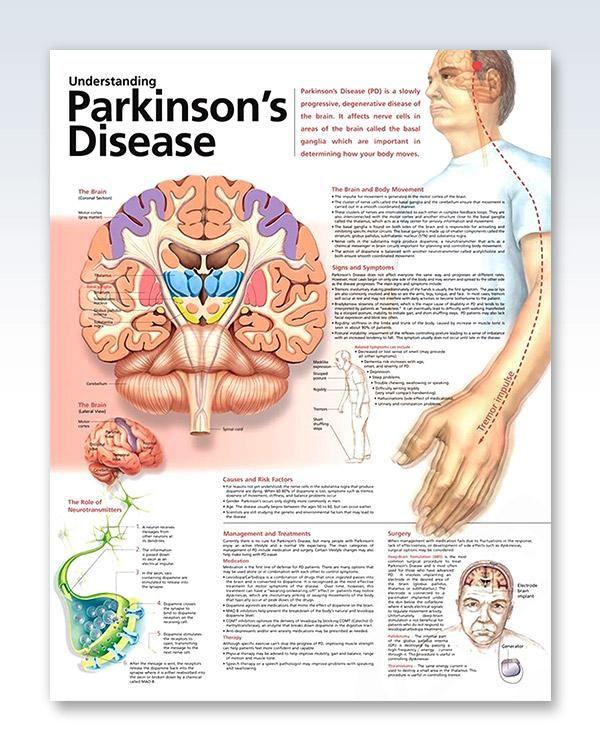 Mejores 180 imágenes de Parkinson en Pinterest | Enfermedad de ...