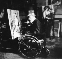 The famous French painter Renoir battled rheumatoid arthritis for nearly three decades of his life. His first attack happened in 1898 and his joints became severally deformed. By 1910, he was confined to a wheelchair and his deformed hands looked like bird claws. Despite this, he continued to paint and produced some great masterpieces.