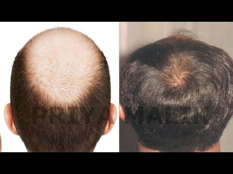 ALOPECIA-BALDNESS-HAIR LOSS || TYPES, SYMPTOMS, CAUSES OF ALOPECIA || DHT BLOCKERS -  How To Stop Hair Loss And Regrow It The Natural Way! CLICK HERE! #hair #hairloss #hairlosswomen #hairtreatment Watch More – In this video, I am sharing a Full detail information about ALOPECIA,BALDNESS,HAIR LOSS. Alopecia is a autoimmune disease, or severe Hair loss called as Alopecia.... - #HairLoss