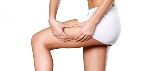 26 Effective Tips To Get Rid Of Cellulite Fast