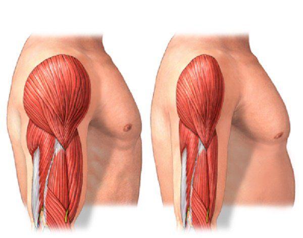 """Investigaciones recientes han descubierto un """"disparador"""" biológico para la pérdida o atrofia muscular, y dos compuestos que pueden detener ese disparador."""