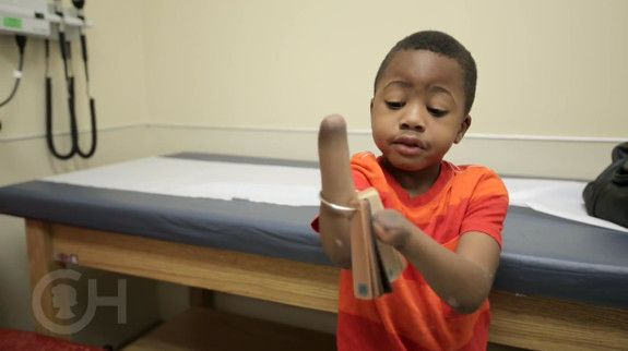 3D Printed Models Helped Surgeons Prepare for World's First Pediatric Bilateral Hand Transplant