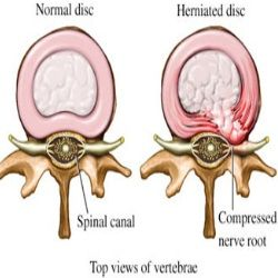 Image of a normal back disc and a herniated disc which affects the Sciatic nerve.