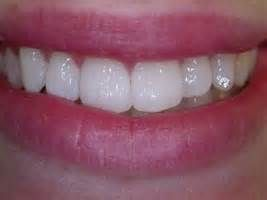 Image result for diamonds on teeth