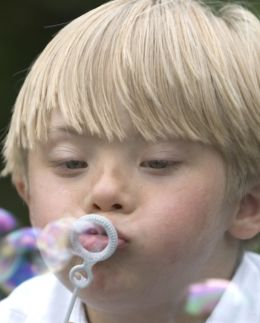 Treatment of Hypernasality in Children with Down Syndrome - Pinned by #PediaStaff.  Visit http://ht.ly/63sNt for all our pediatric therapy pins