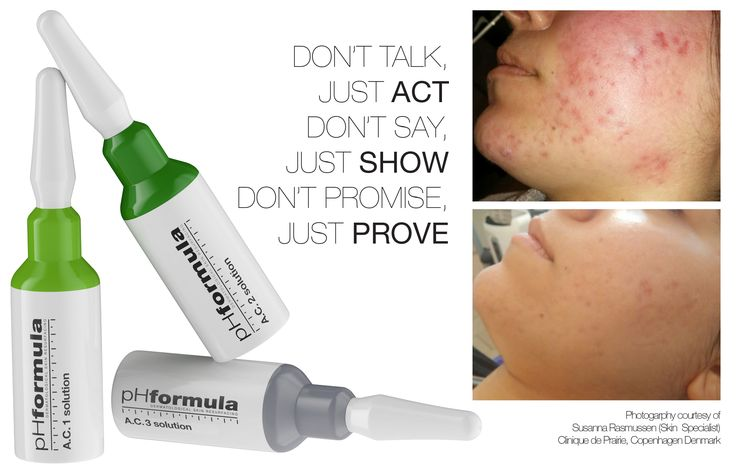 All you need to know to help you! #acne #treatment #skincare