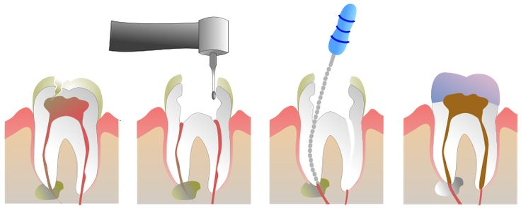 Las Vegas Root Canal Therapy provided by Dr. Kevin Khorshid DDS will help save your natural teeth and avoid costly dental implant surgery.